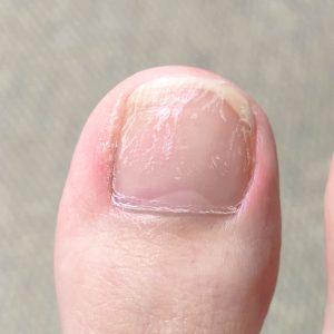 爪が傷んだ
